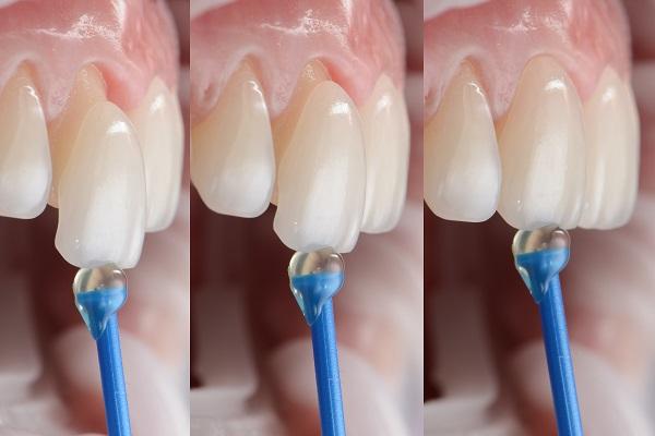 Cosmetic Dentistry and Veneers